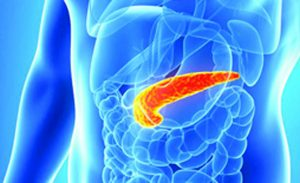 Focus on Pancreatic Cancer