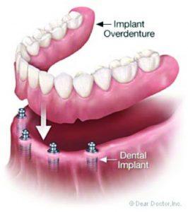 Understanding Dental Implants  Part 2