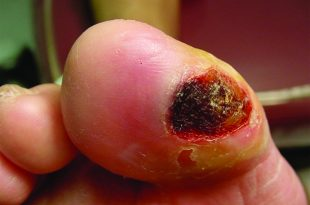 You Need to Know the Truth About the Dangers of Diabetic Foot Wounds