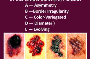 A More Precise Skin Cancer Screening