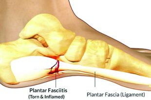 Sports & Activity Related Foot & Ankle Injuries
