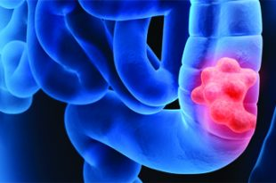 Colorectal Cancer Awareness and Prevention
