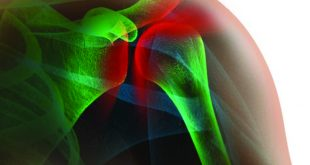 Shoulder Pain What's Really the Best Treatment for You?
