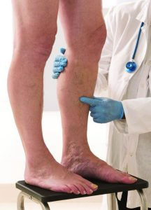 Deep Vein Thrombosis Are You At Risk?