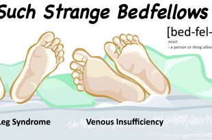 Venous Insufficiency & Restless Leg Syndrome
