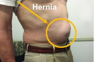 What is That Lump in My Belly? Another article on hernias? Yes, they are that important. And that common.