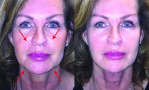 Lifting Sagging Skin & Replacing  Lost Volume Just Got Revitalized