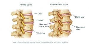 Osteoarthritis…  Is there any hope?