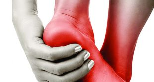 Should You Seek Medical Help for Heel Pain