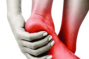 Should You Seek Medical Help for Heel Pain