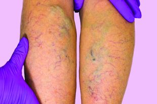 Swollen Legs and Venous Insufficiency
