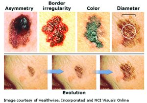 t Melanoma is a Year-Round Concern