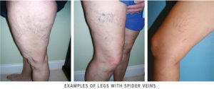 Spider Veins – Cosmetic Concern or Tip of the Iceberg?
