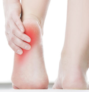 The Double-Sided  Discomfort of Heel Pain