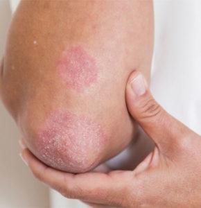Psoriasis Awareness: What You Should Know