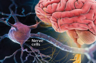 What you Should Know About Multiple Sclerosis (MS)
