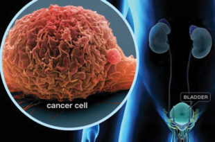 Bladder Cancer - What You Need To Know