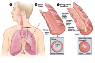 Figure A shows the location of the lungs and airways in the body. Figure B shows a cross-section of a normal airway. Figure C shows a cross-section of an airway during asthma symptoms.