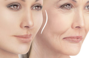 THE BASICS OF FACIAL FILLERS