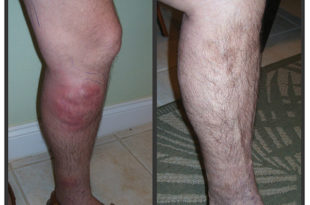 Top 6 Reasons to Get Your Leg Vein Evaluation and Treatment this Fall