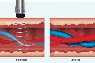 Erectile Dysfunction: 2 Unique Treatment Options that Don't Just Mask Symptoms