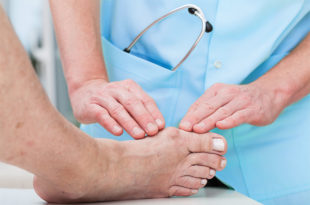 Painful Bunions: Do You Need Surgery?