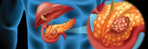 Pancreatic Cancer: Understanding Your Options - Whipple Procedure