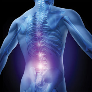 What Anyone Aged 50+ Needs To Know About Lower Back Pain Or Sciatica