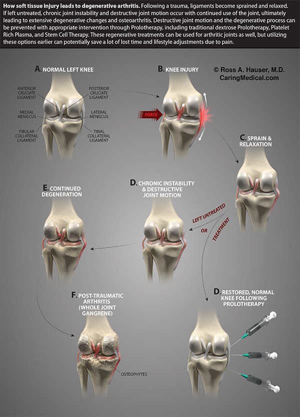 Stem Cell Therapy Options for Osteoarthritis