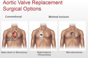 Valvular Heart Disease & Aortic Stenosis