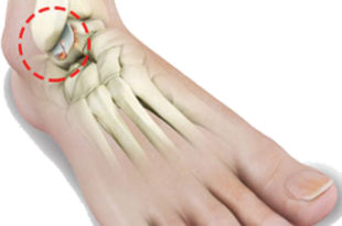 Ankle Arthritis and Your Options