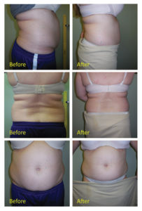 Belly Fat is One of the Hardest  Problem Areas to Get Rid Of !
