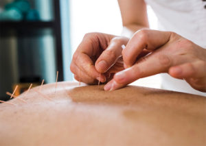 Acupuncture is a Safe and Natural  Way to Help You Handle Stress