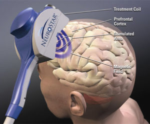 Promising 'New' Therapy  For Parkinson's Disease