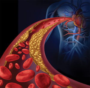Decreasing Your Cardiovascular Risks and Lowering Your Cholesterol