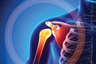 Shoulder Pain: Rotator Cuff Repair & Surgical Options
