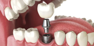 Am I a Candidate for Dental Implants