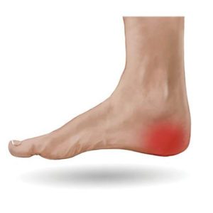 Heel Pain How do you get rid of it
