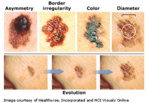 Melanoma... The Most Dangerous form of Skin Cancer