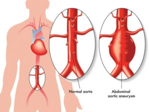 Abdominal Aortic Aneurysm: Are You at Risk?