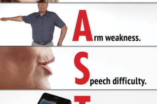 Stroke Awareness Month: What You NEED to Know About Prevention & Treatment