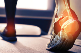 Tips to Avoid Foot and Ankle Problems