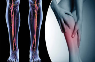 DVTs & Leg Swelling: What You Need to Know