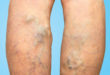 Did You Know That Men Can Get Varicose Veins Too?