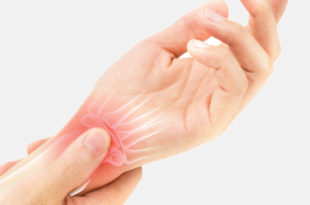 Wrist Sprains and Tears: What Are Your Options?