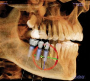 Computer Guided – Dental Implant Placement