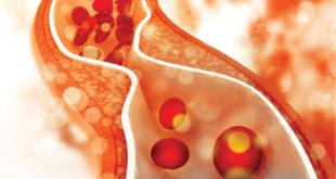 Lower Cholesterol = Decreased Cardiovascular Risks