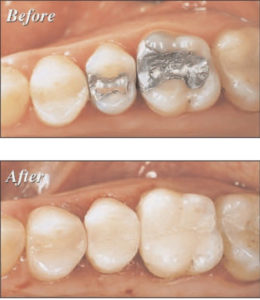 All in one Dental Visit with CEREC