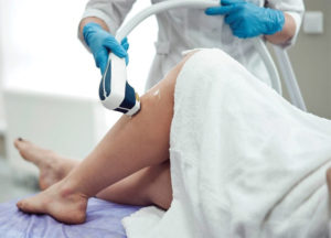 Does Laser Hair Removal Really Work