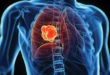 Lung Cancer Awareness Month: Low Dose CT Screenings Save Lives
